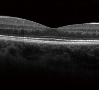An OCT scan for ophthalmic imaging