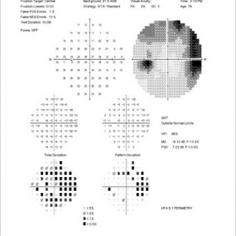 Single Visual Field Analysis print