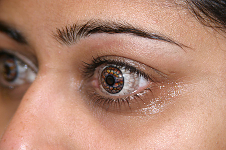 Cosmetic Contact Lenses and Prosthetic Contact Lenses at Zacks London Eye Clinic