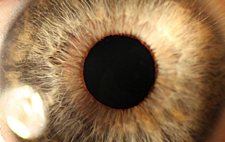 Complex Eye Prescriptions