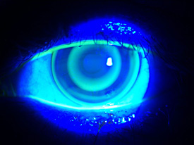 Orthokeratology contact lens on a patients eye
