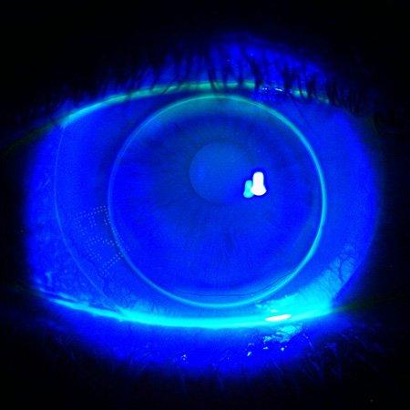 Piggyback contact lenses at Zacks London Eye Clinic
